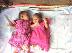 twin-baby-girls-born-in-africa