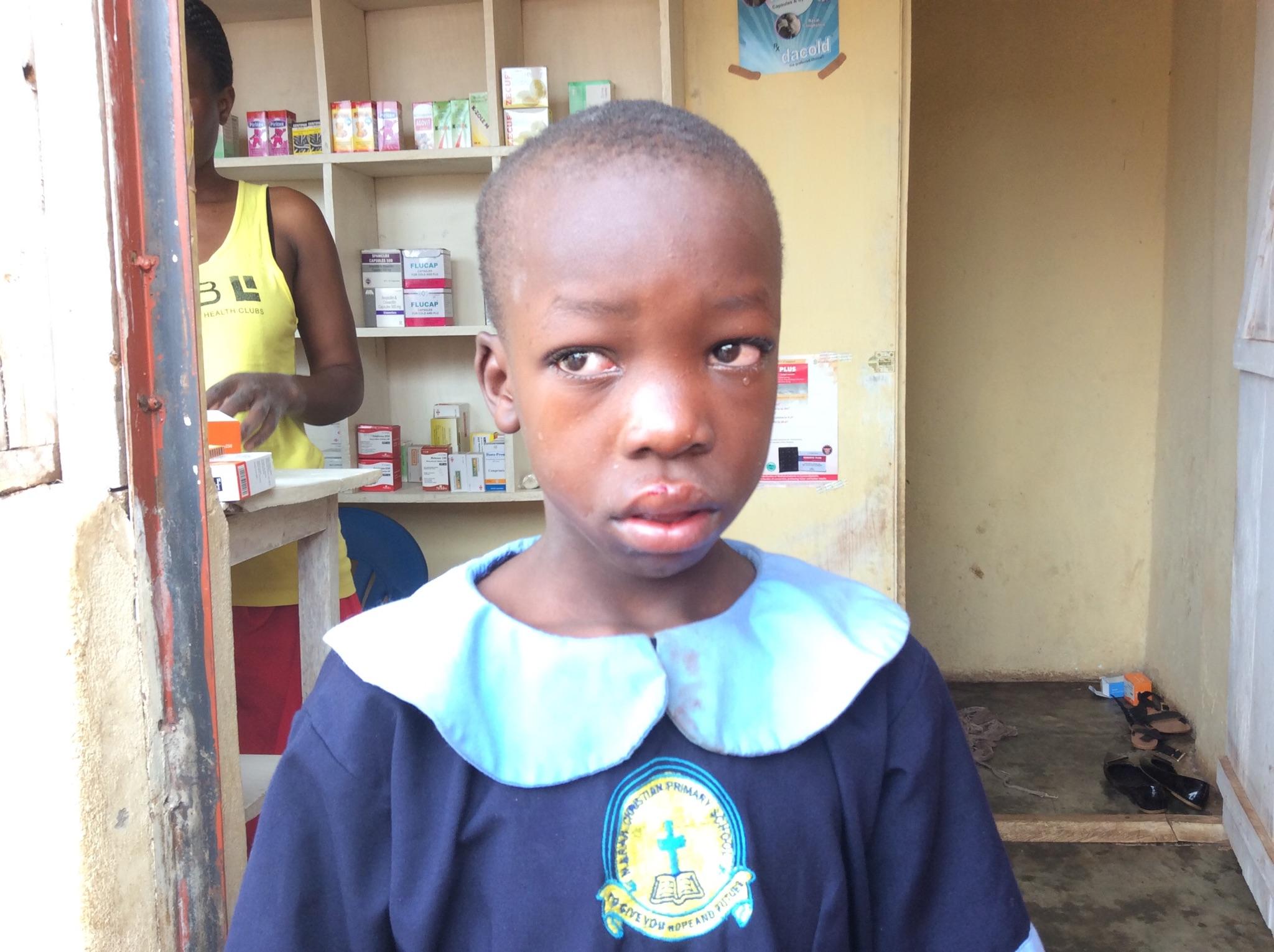 uganda-girl-injured-in-accident