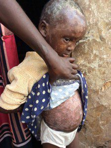 advocate-continues-to-help-girl-in-need-in-slums-uganda